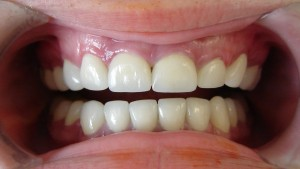 18_year_old_texan_after_complete_dental_makeover_porcelain_crowns